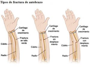 radio brazo